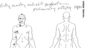 140818000822-brown-autopsy-diagram-story-body